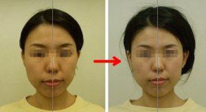 顔のゆがみ改善例